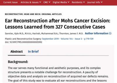 Journal article describing ear reconstructive techniques for plastic surgeons and trainees - surgical education